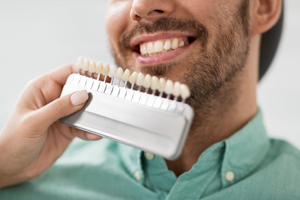 A man comparing dental veneers