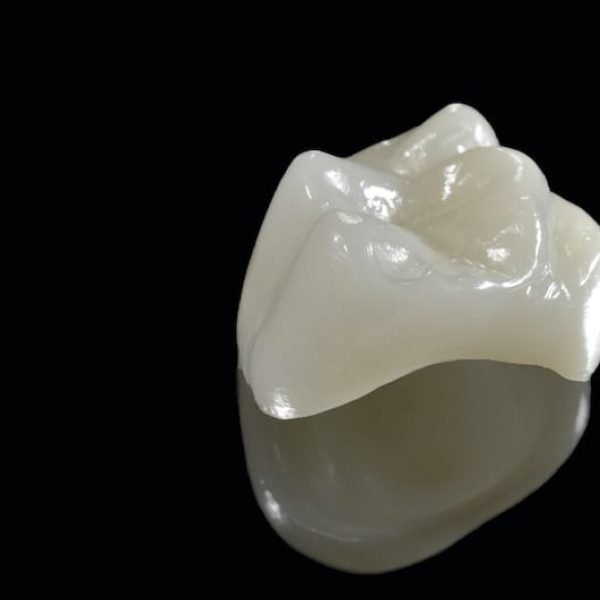A dental crown isolated